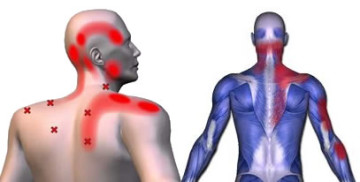Jaw Neck And Shoulder Pain